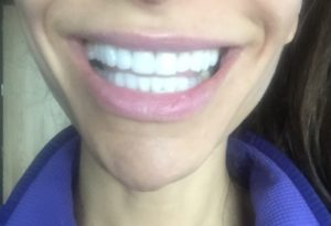 Whitest Teeth Possible No Sensitivity all natural